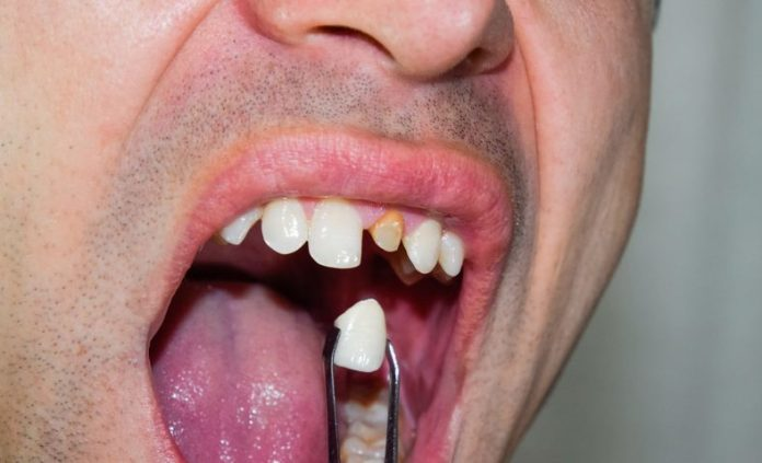 How To Recognize Tooth Enamel Loss