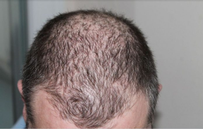 How To Stop Hair Loss And Prevent Hair Baldness