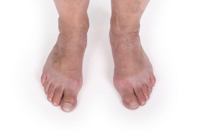 Preventing Varicose Veins Properly