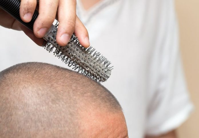 How To Get Rid Of Dandruff And Itching Dandruffs